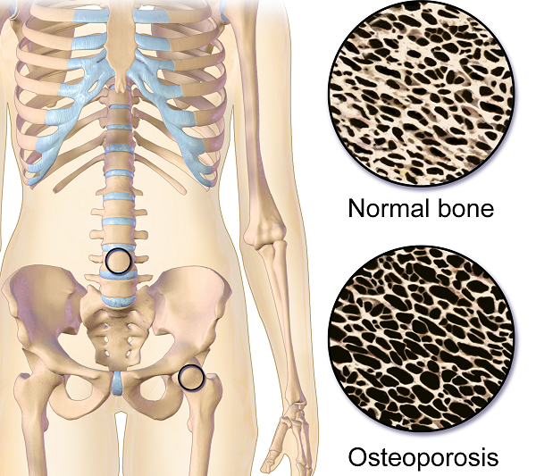 Osteoporosis Myths - Test your OP IQ!