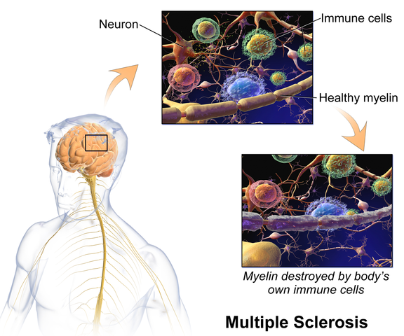 Multiple Sclerosis: Dealing with Bowel Dysfunction