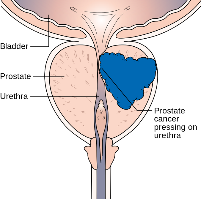 Male Reproductive, Bladder, And Colorectal Cancers