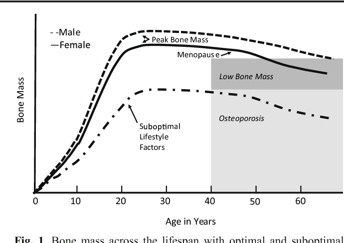 Osteoporosis is a Pediatric Disease