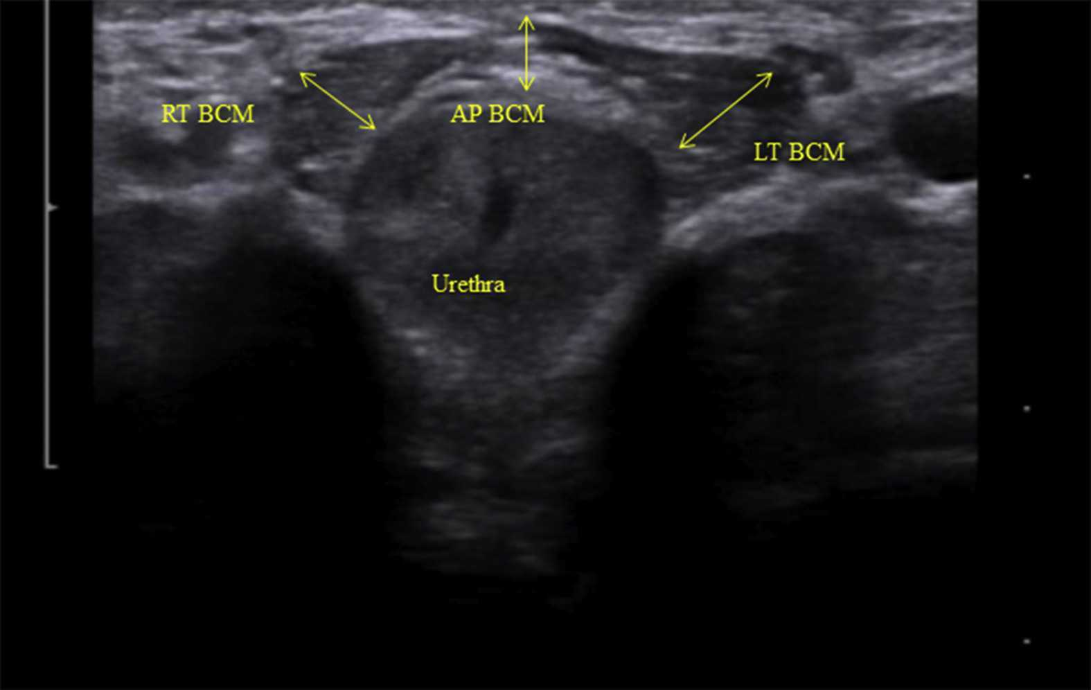 Rehabilitative Ultrasound Imaging for Men's Pelvic Health