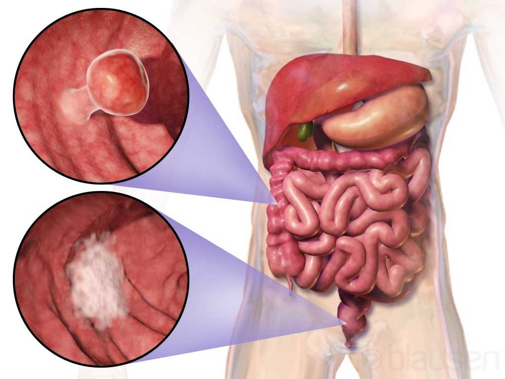 Colorectal Cancer: Complications after the Cure