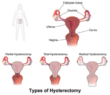 Are Women Opting for Hysterectomies too Often?