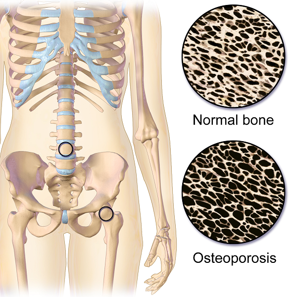 Treating Osteoporosis and Multiple Sclerosis