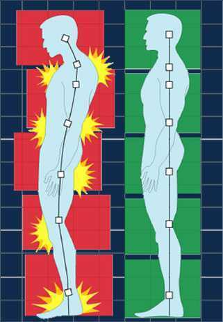 Walk this Way: 5 Visual Imagery Cues to Improve Your Patient's Posture and Gait