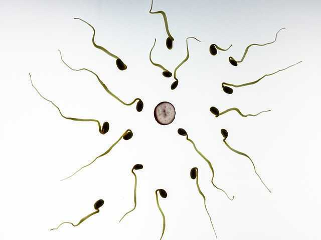Testicular Cancer: Seeking to Spare the Sperm
